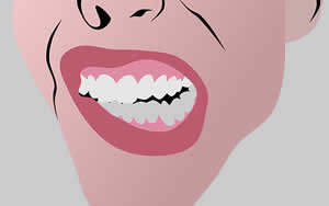 Zähneknirschen